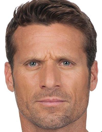 Men's Botox