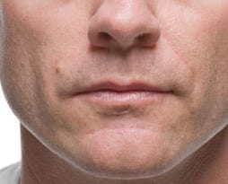 Men's Dermal Fillers